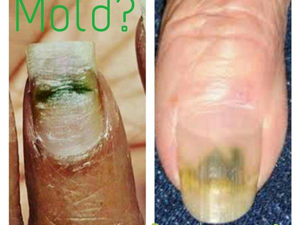is that green nail mold or fungus  04  10 by team nail talk radio