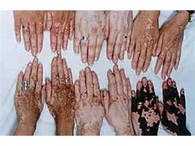 Bible Leprosy Albino Vitiligo Origin Of White Skin Melanin